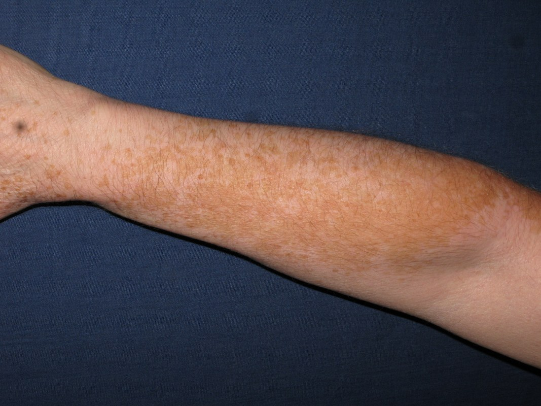 rechterarm vitiligo voor